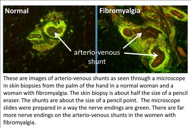 fibromyalgia hands feet